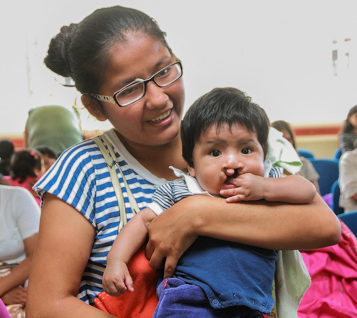 Keisi Chávez junto a su hijo Javier Choque, el cual tiene labio leporino y paladar hendido y espera ser operado.